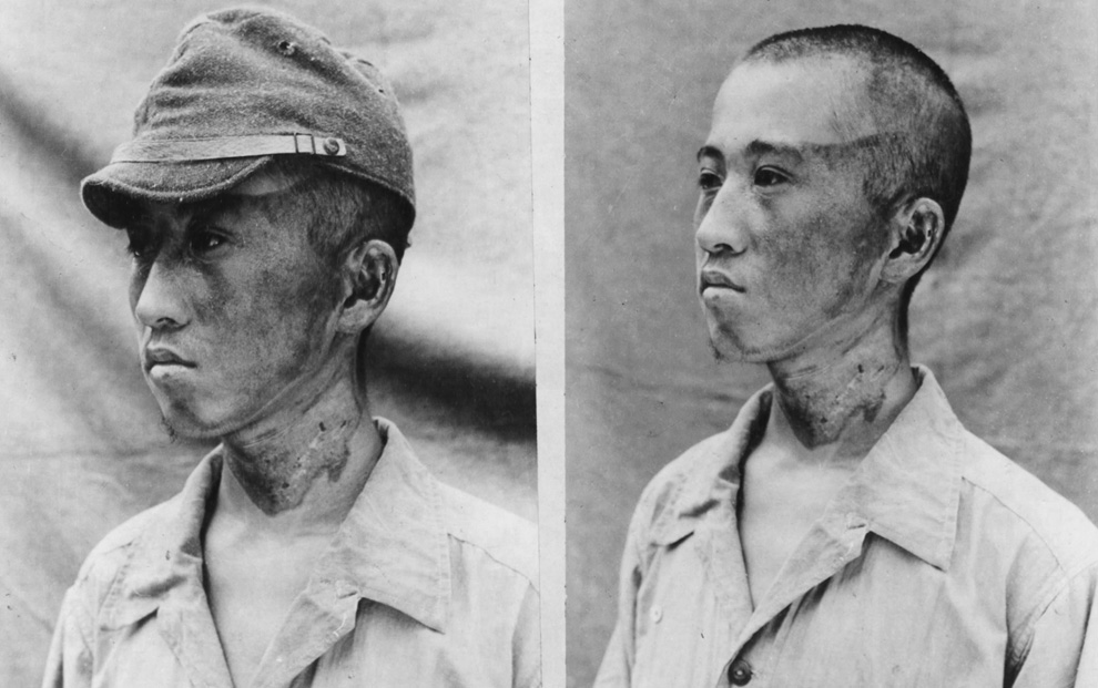 This patient (photographed by Japanese forces on October 2nd, 1945) was about 6,500 feet from ground zero when the rays struck him from the left. His cap was sufficient to protect the top of his head against flash burns.