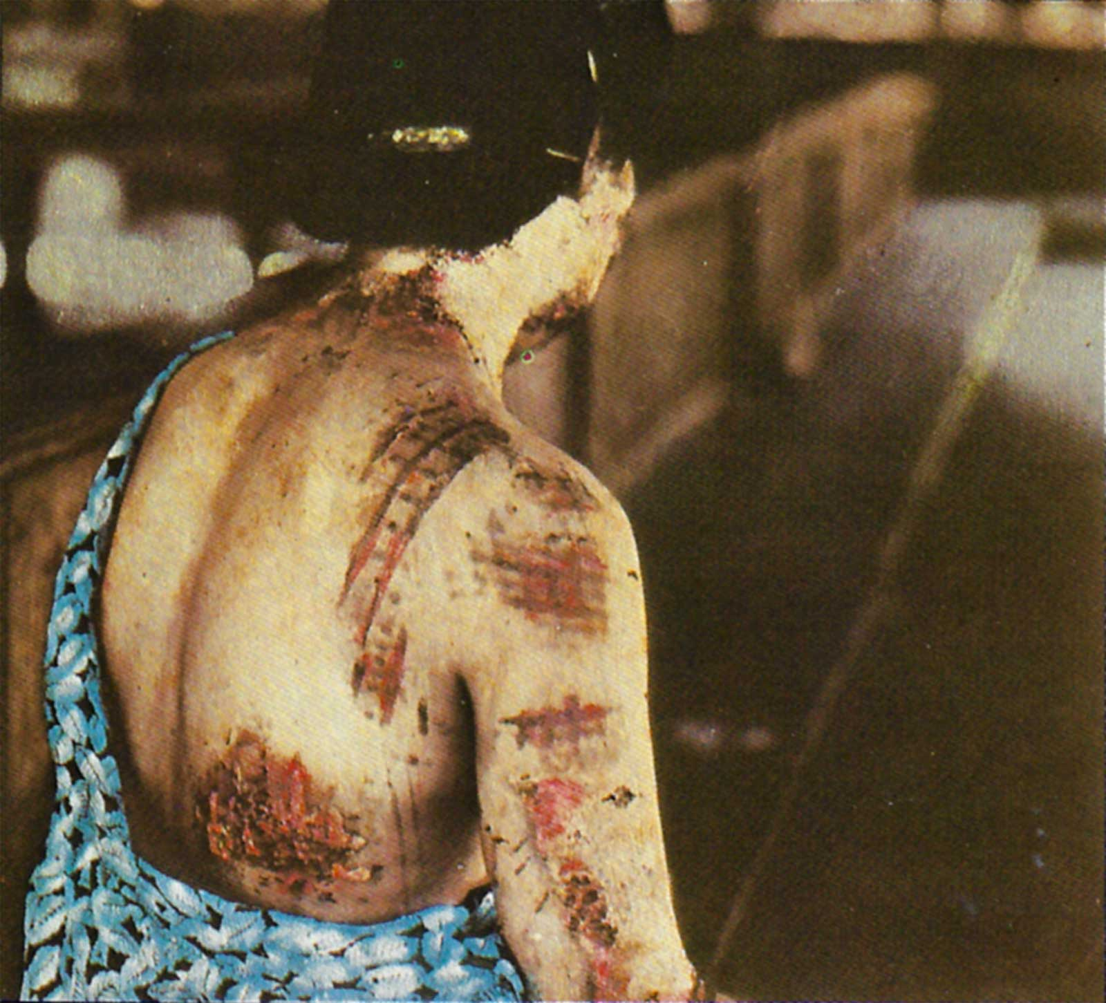 The burns are in a pattern corresponding to the dark portions of the kimono she was wearing at the time of the explosion.